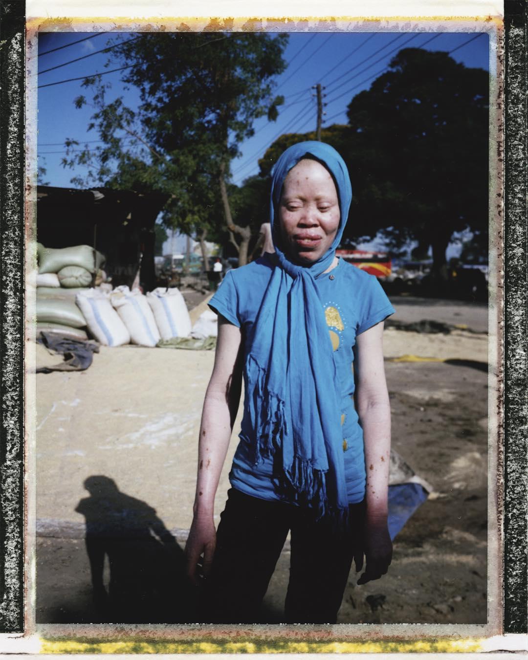 Projekt dokumentalny o afrykańskich albinosach – pomóżmy go zrealizować!